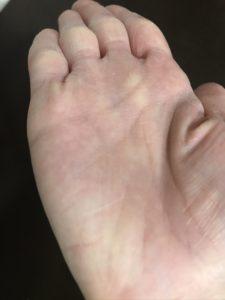 乾燥している手