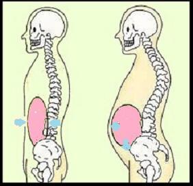 産後反り腰